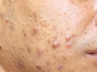 how to get rid of acne and pimples - nodules